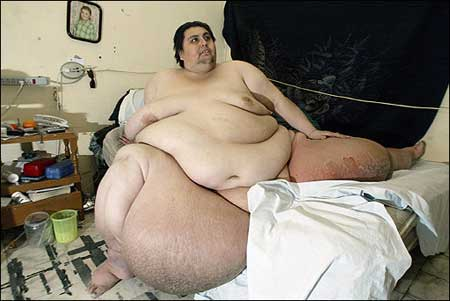 20080430094156-obesidad-1-.jpg