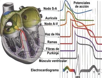 20090319150202-electrocardiograma.jpg